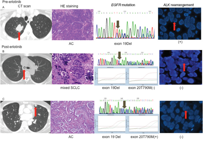 Changes of driver genes in different lesions with EGFR-TKI.