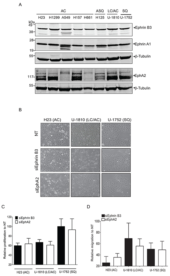 Endogenous expression of Ephrin B3 or EphA2 drives proliferation and migration of NSCLC cells.