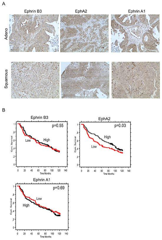 Concomitant Ephrin B3, Ephrin A1 and EphA2 expression in NSCLC clinical specimens.