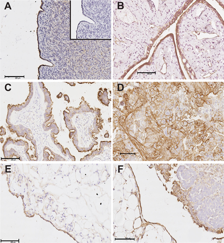 Annexin A2 immunostaining in human ovarian tissues and omental tissues.