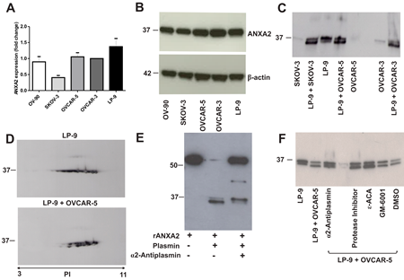 Annexin A2 expression in ovarian cancer cell lines, peritoneal cell line and co-cultured ovarian cancer and peritoneal cells.