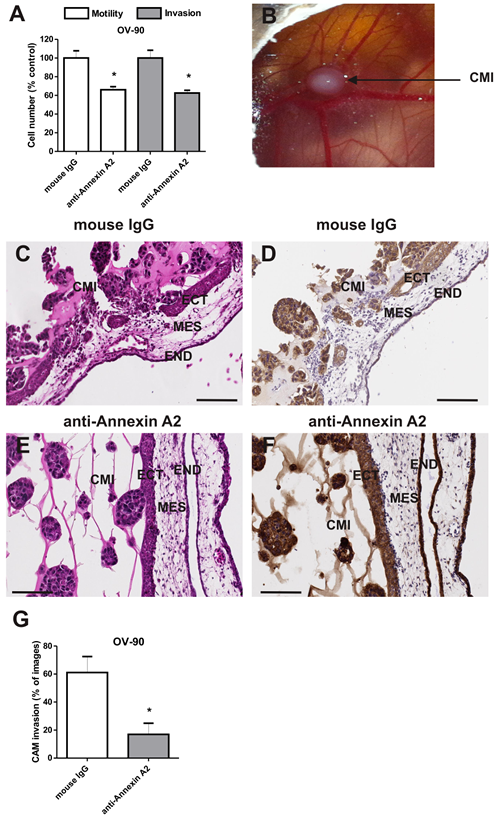 Annexin A2 promotes OV-90 cell motility and invasion