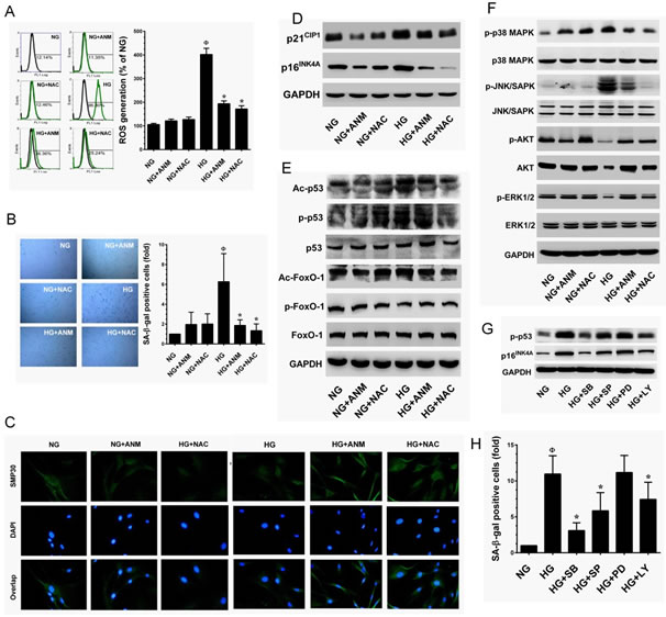 Antcin M inhibits HG-induced senescence in HNDFs.