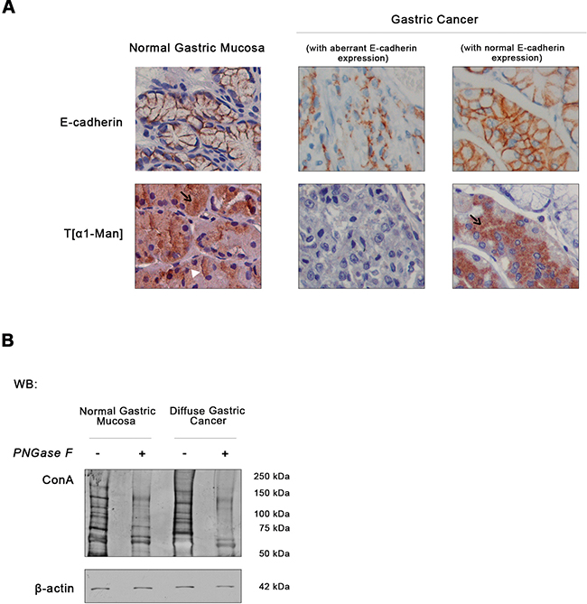 Expression of E-cadherin and O-mannosyl glycans in human normal gastric mucosa and diffuse gastric cancer.