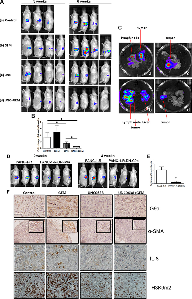 G9a inhibitor overrided GEM resistance and suppressed tumor growth and metastasis of GEM-resistant pancreatic cancer cells.