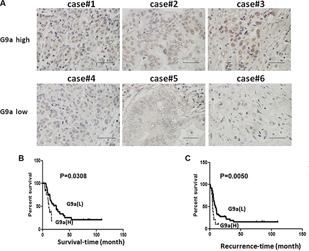 High levels of G9a expression was correlated with poor clinical outcome in pancreatic cancer patients.