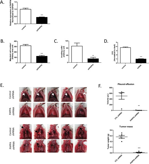 Effects of PAPPA shRNA transfection on migration, invasion, proliferation of NCI-H290 in vitro and tumor growth in orthotopic xenograft model.
