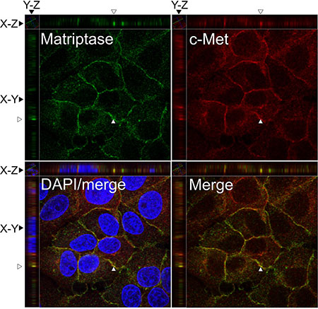 Matriptase and c-Met proteins are co-expressed in IBC cell lines.
