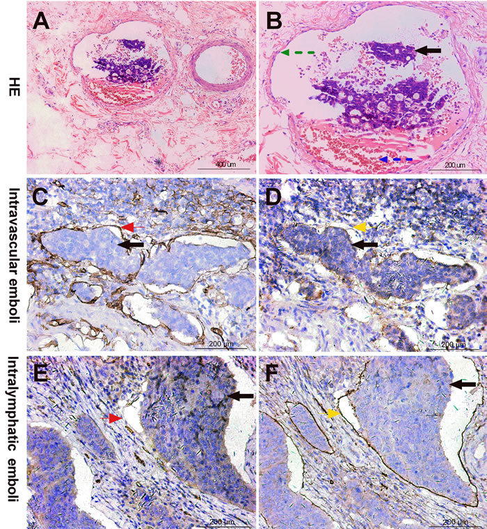 Intravascular emboli (IVE) diagnostic criteria by HE and IHC staining.