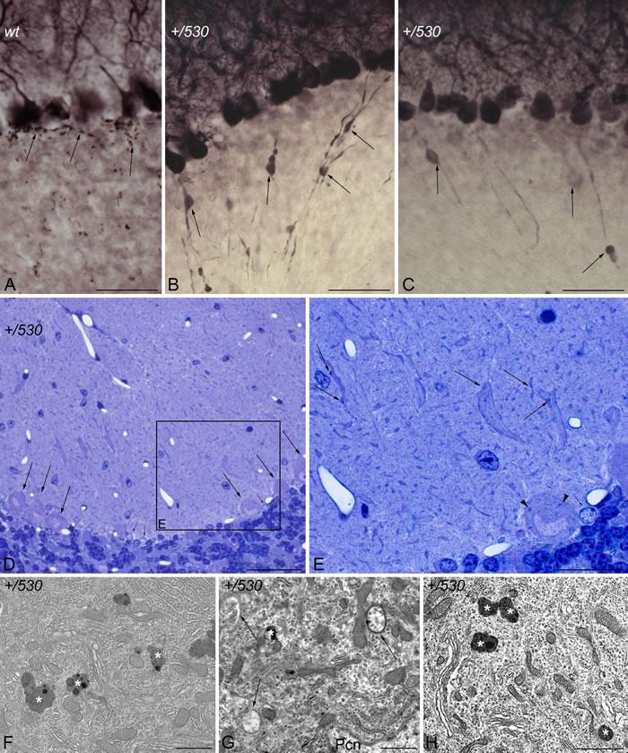 Purkinje cell degeneration in