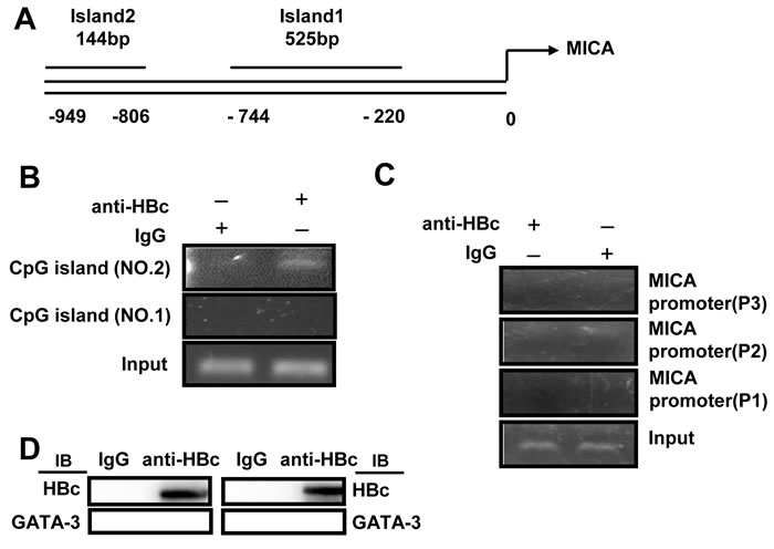 HBV core protein inhibits MICA expression