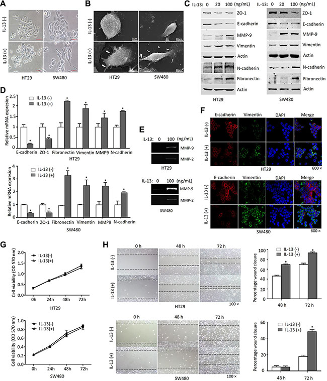 Oncotarget | IL-13/STAT6 signaling plays a critical role in