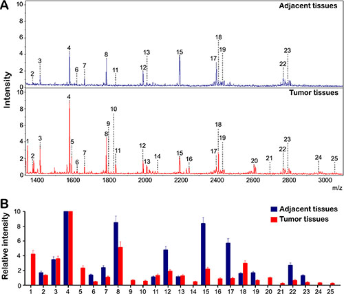 The profiles of N-Glycan composition in HCC tumor and adjacent tissues.