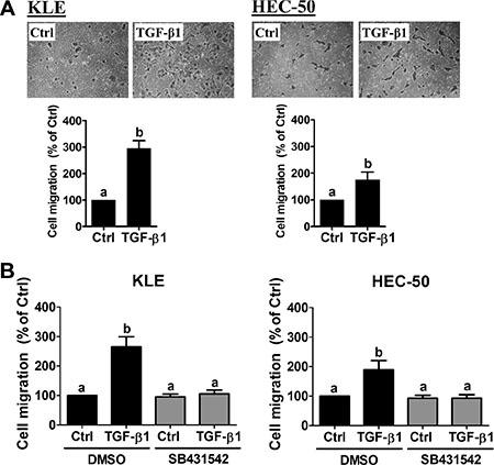 TGF-β1 stimulates type II endometrial cancer cell migration.