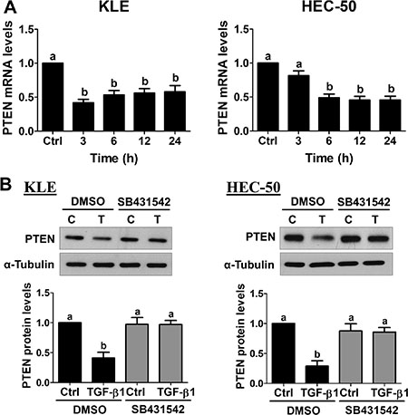 TGF-β1 down-regulates PTEN expression in type II endometrial cancer cells.