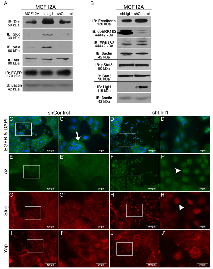 Llgl1 loss drives EGFR mislocalization and novel signal transduction.