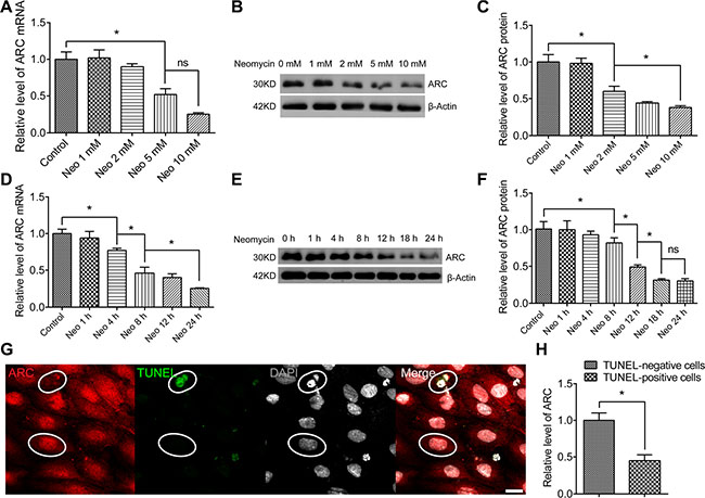 The ARC level in HEI-OC-1 cells decreased after neomycin injury.