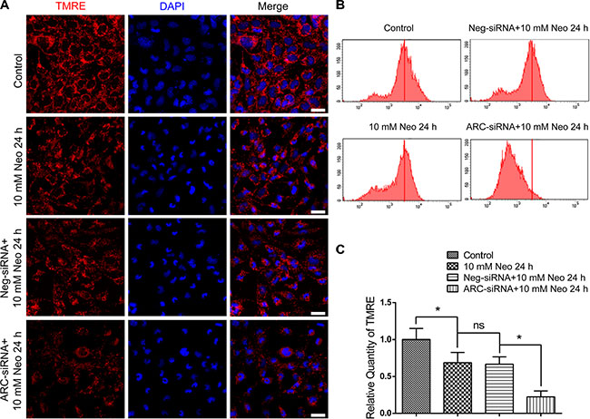 ARC inhibition decreased the MMP of HEI-OC-1 cells after neomycin injury.