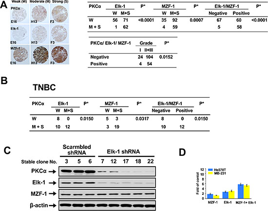 Correlations between PKCα expression and Elk-1/MZF-1 expression in breast cancer.