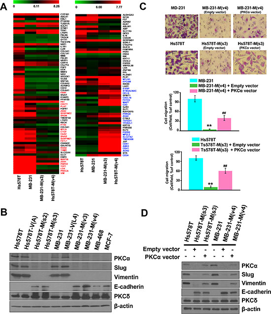 Disrupting the interaction between MZF-1 and Elk-1 decreases EMT potential.