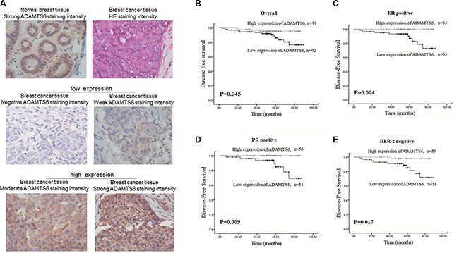 High expression of ADAMTS6 is associated with favorable prognosis of BC patients.