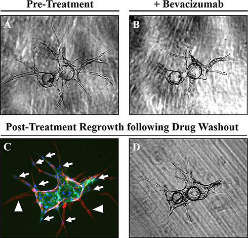 Regression and regrowth of established vessels along pre-defined basement membrane tracts.