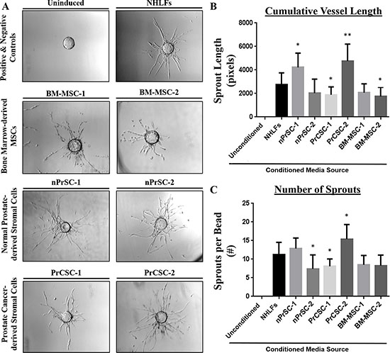 Primary human prostate stromal cultures enriched in MSCs and/or MPCs potently induce angiogenesis.