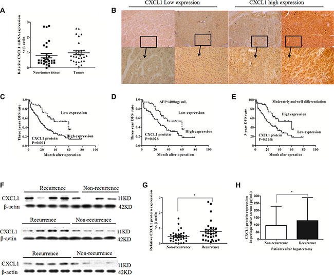 CXCL1 expression in HCC tumor and adjacent non-tumor tissues and association with recurrence.