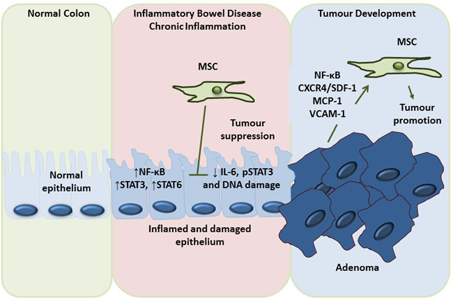 Dual role of MSC in the prevention of inflammation induced colon cancer development and promotion of colon cancer metastasis.