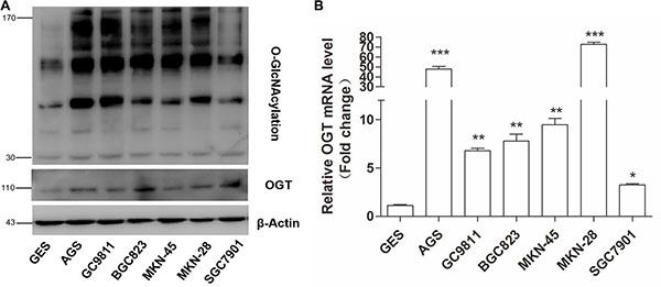 Gastric cancer cells exhibit elevated O-GlcNAcylation and OGT levels.