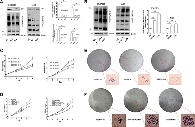 O-GlcNAcylation is associated with gastric cancer cell proliferation in vitro