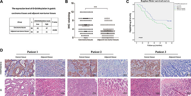 The O-GlcNAcylation levels are positively correlated with the malignancy of gastric cancer.
