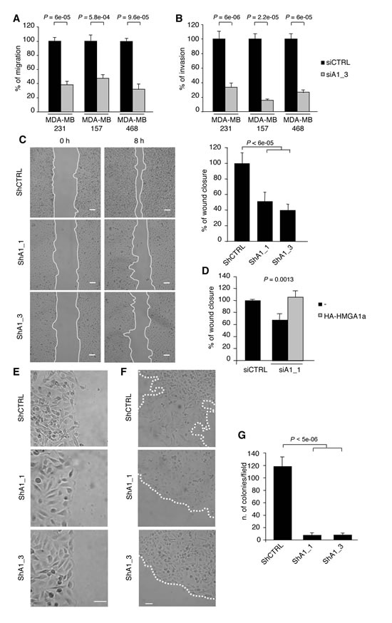 HMGA1 Depletion Inhibits Transformation Characteristics in Breast Cancer Cells.