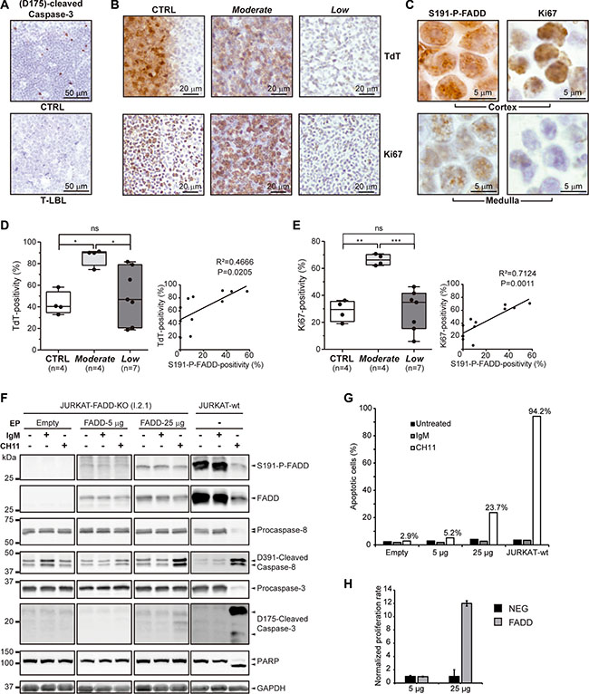 Apoptosis, tumor and proliferation markers in T-LBL.