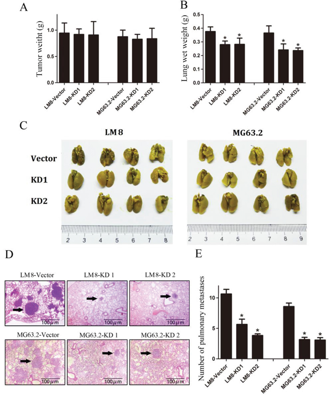 CD151 knockdown suppresses osteosarcoma pulmonary metastasis in vivo.