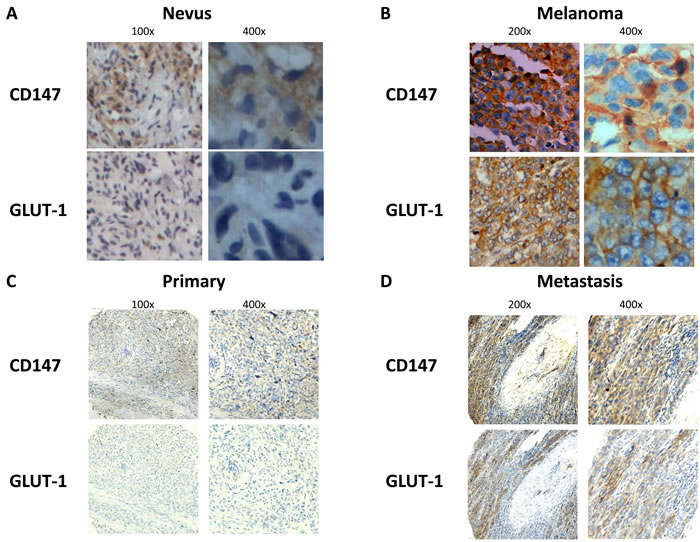CD147 and GLUT-1 were overexpressed in melanoma compared with nevus