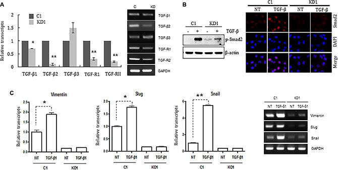 Knocking down ELK3 in MDA-MB-231 cells renders them unresponsive to TGF-ß.