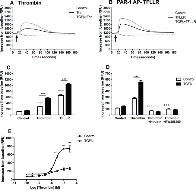 TGFβ-mediated PAR-1 upregulation enhances A549 lung adenocarcinoma cell responsiveness to thrombin signalling.
