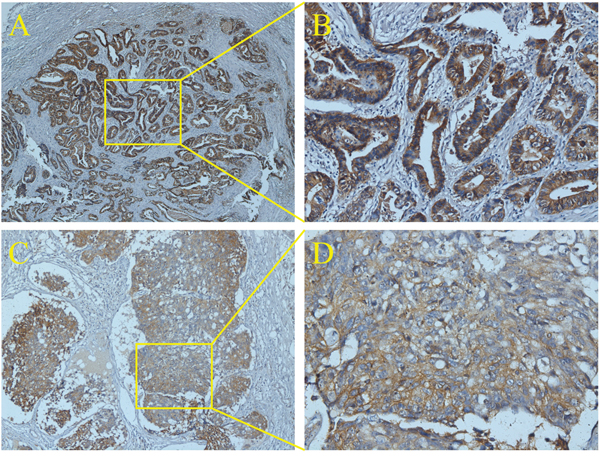 The histology of ENM by immunohistochemistry of EpCAM.