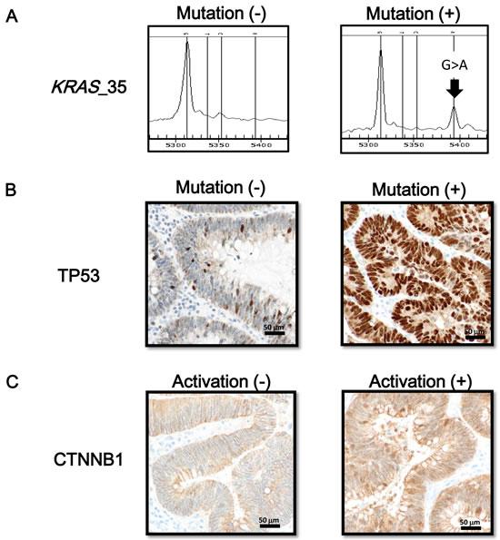 Oncogene mutation status and immunostaining of