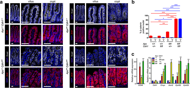 Combined Vil-CreERT2 with Apc and Cdh1 homozygous floxed alleles results in β-catenin nuclear localization and activation of Wnt target genes.