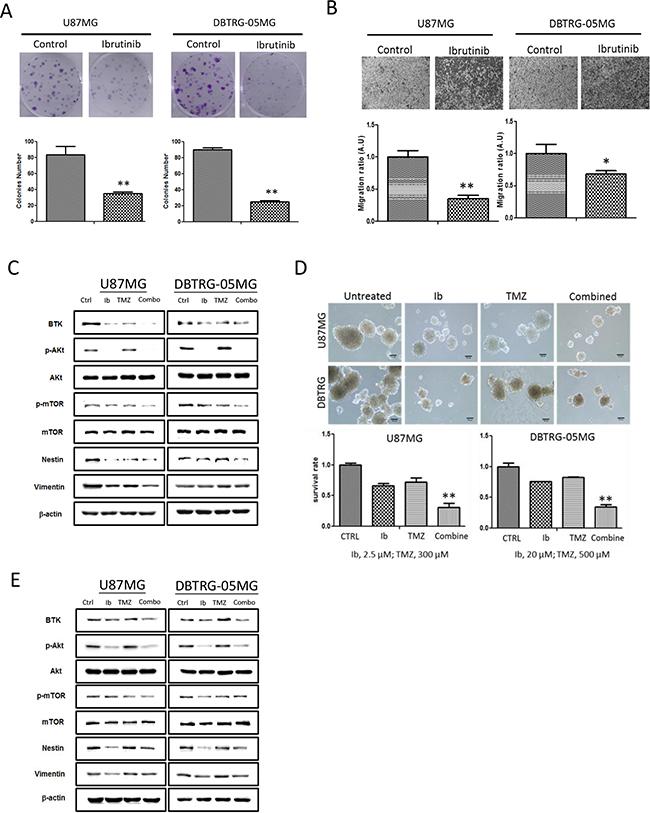 Figure 4. Ibrutinib suppressed GBM tumorigenic ability resembling Btk-gene silenced GBM cells.