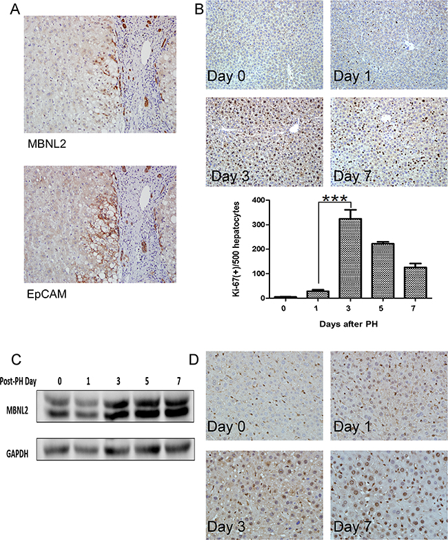 Expression of MBNL2 in hepatocytes newly derived from hepatic progenitor cells.