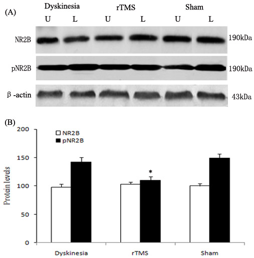 Effects of repetitive transcranial magnetic stimulation (rTMS) treatment on pNR2B-Tyr1472 and NR2B levels in dyskinetic rats.