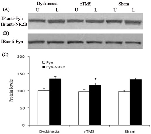 Effects of repetitive transcranial magnetic stimulation (rTMS) treatment on interactions of NR2B with Fyn in dyskinetic rats.