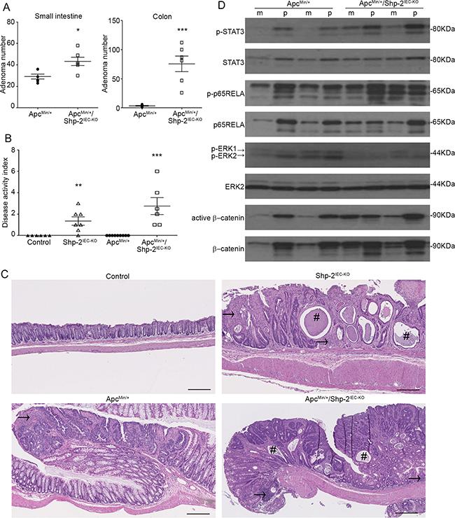 IEC-specific Shp-2 ablation exacerbates tumorigenesis in ApcMin/+ mice.