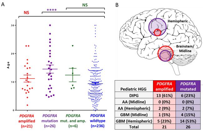 PDGFRA mutation is seen in older pediatric HGG patients.