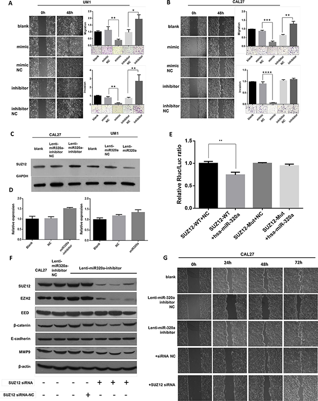 miR-320a suppresses migration and invasion of TSCC cells by targeting Suz12 in vitro.