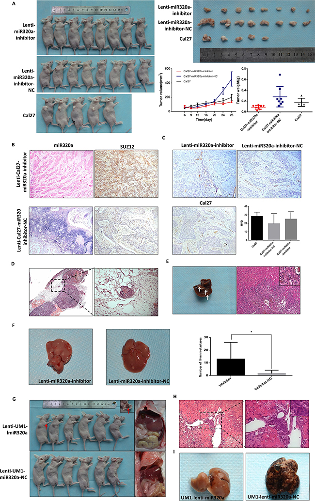 miR-320a suppresses invasion and metastasis of TSCC in vivo.