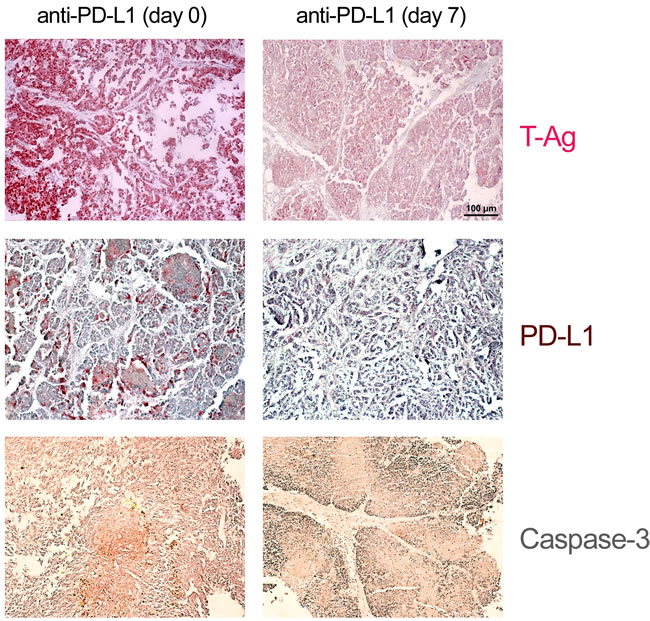 Histological evidence for tumor cell elimination after application of anti-PD-L1 antibodies.